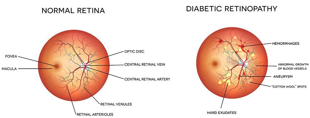 illustration of norma retina vs diabetic retina