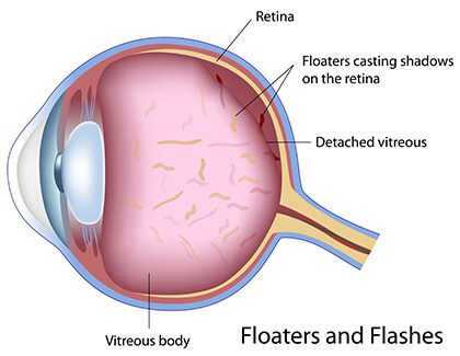 Diagram of Floaters in the eye
